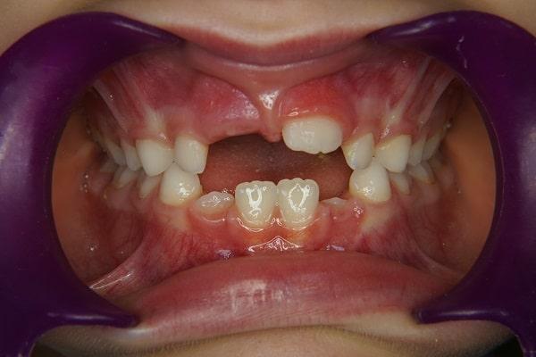 orthodontiste lyon 3 agénésie